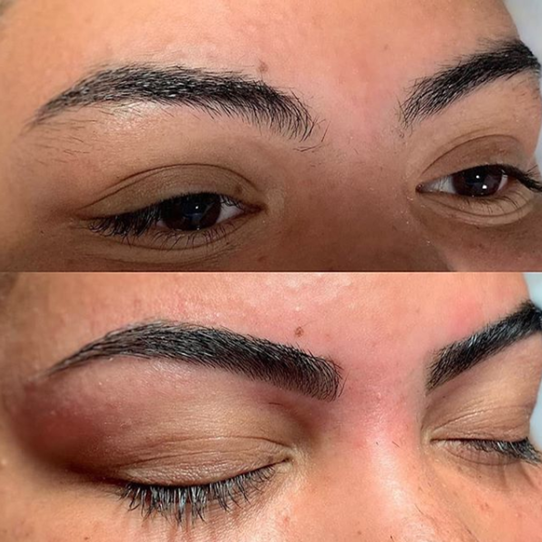 Before and after eyebrow treatment